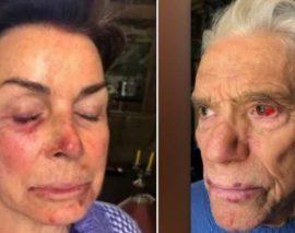 Agression du couple Tapie, ils ont reçu «beaucoup de coups»